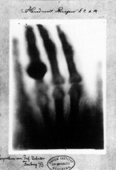 レントゲンが撮影した妻の手のレントゲン写真